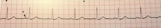 cardio01